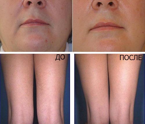 Фотоэпиляция лица и ног, до и после