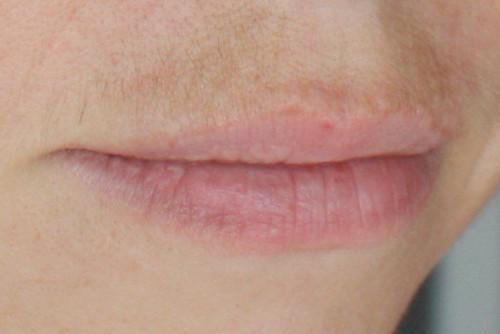 Как избавится от усиков над верхней губой в домашних условиях